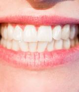 teeth-160x186